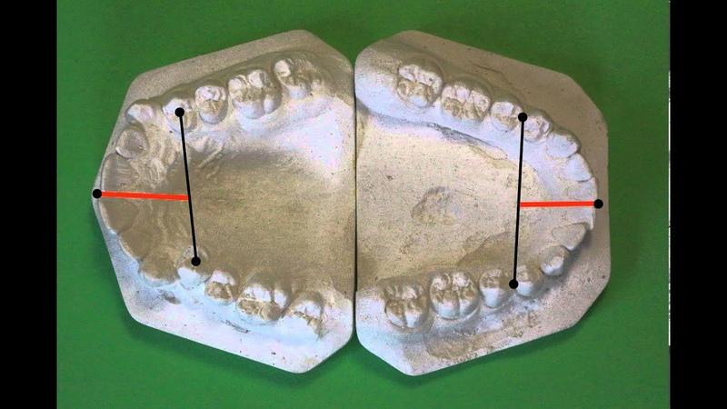 Биометрическое изучение антропометрия моделей челюстей в период постоянного прикуса
