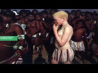 Колония прокаженных (Судьба альбиносов)