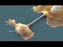 Грозит ли миру страшная эпидемия рака medals regcli biz