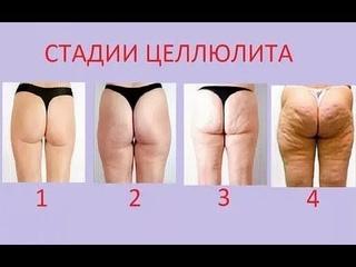 Какая у вас стадия целлюлита? Массажист о признаках целлюля 1, 2 стадии у девушек, 3, 4 стадии у женщин. Антицеллюлитный массаж.