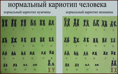 КАРИОТИП • Большая российская энциклопедия - электронная версия   292x464