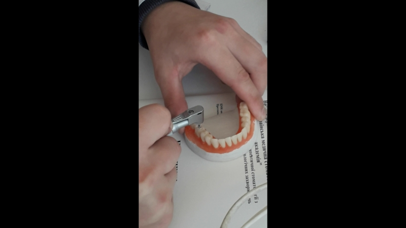 Дитяча Стоматологія - Препарування каріозної порожнини за Блеком