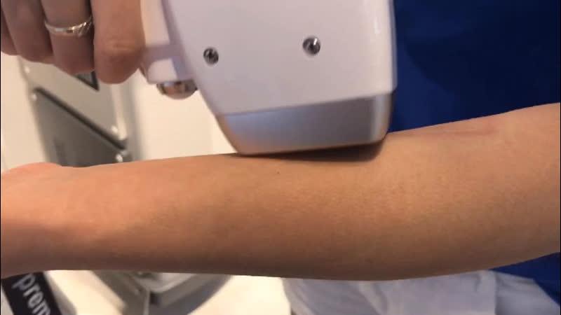 Диодный лазер с вакуум