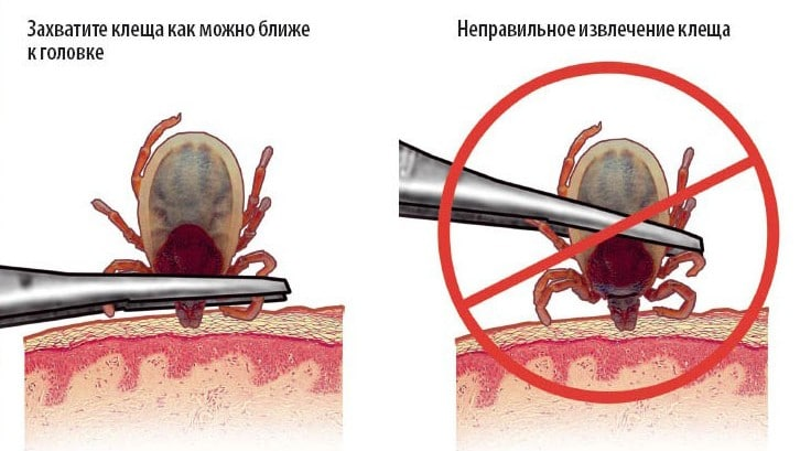 Что делать, если вас укусил клещ: простые рекомендации, изображение №2