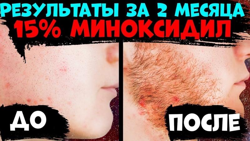 ОТЗЫВ О 15% МИНОКСИДИЛЕ РЕЗУЛЬТАТЫ 15% МИНОКСИДИЛА 2 месяца применения