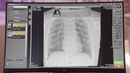 CARESTREAM Image Suite Software with DRX-Detector [X-ray Imaging]