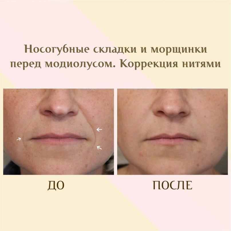 Губы и область вокруг рта., изображение №6