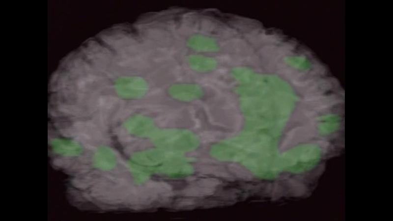 BBC Тело человека Мозг человека 5