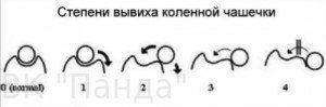 Вывих коленной чашечки (пателлы), изображение №1
