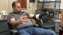 Amputee practicing with the AI-powered neuroprosthetic hand